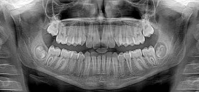 死んだ神経まで生き返る!? 歯と全身の相関性が持つ再生医療への可能性